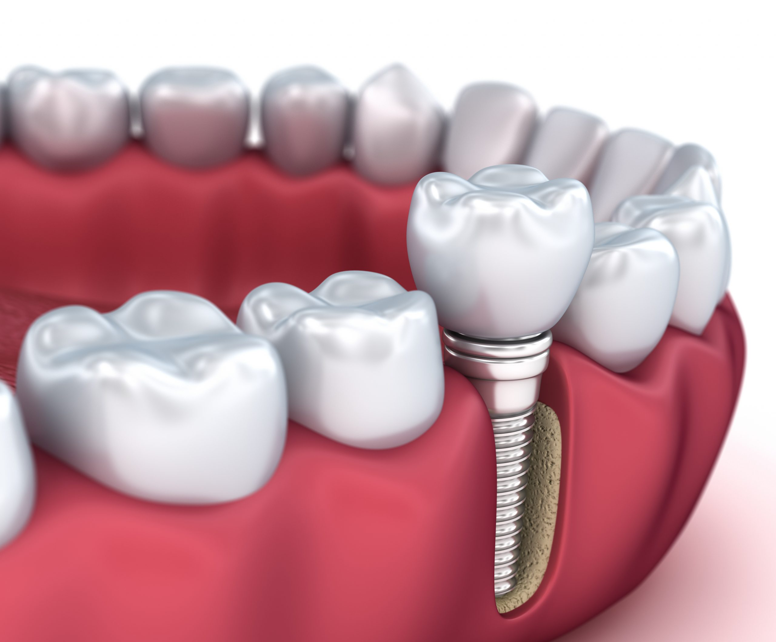 A Beginner's Guide to Dental Implants