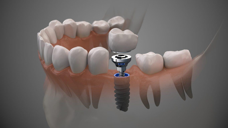 Dental Implants Near You San Diego
